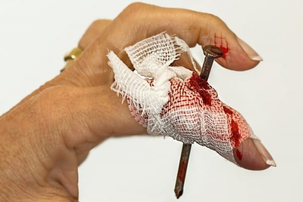 Prioritize YOUR Business's Activities illustrated by a women's index finger bandaged and bleeding because a nail has gone through her finger.